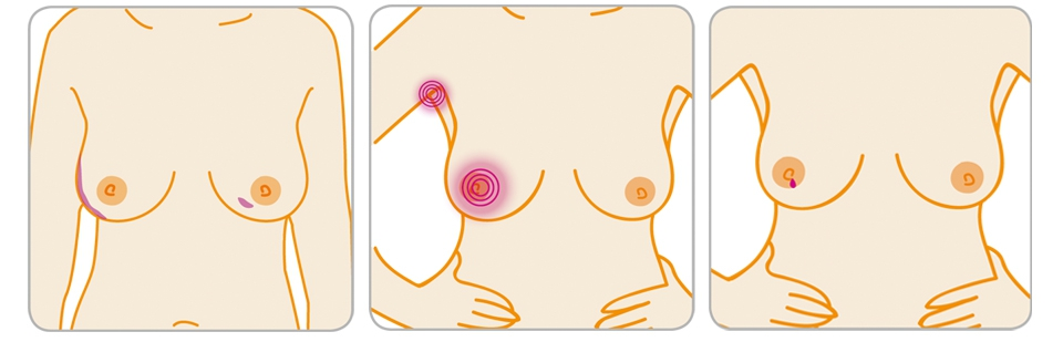 A diagram depicting some of the signs and symptoms of breast cancer