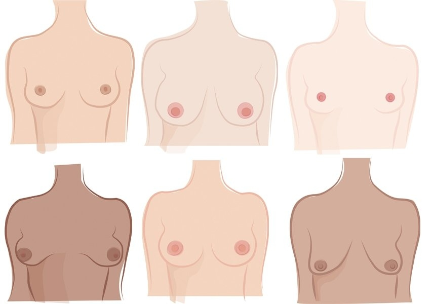 Breasts come in different sizes and shapes