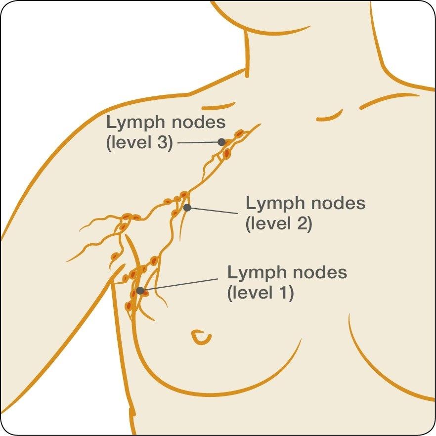 Treatments surgery to the lymph nodes lymph nodes diagram ccuart Gallery