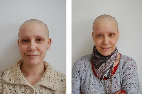 When My Hair Regrew After Chemotherapy It Felt Like Getting My Life