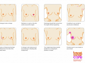 This is an infographic showing how to be breast aware.